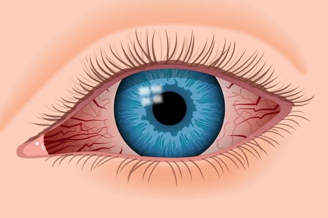 Cum tratam ochii rosii: cauze si remedii